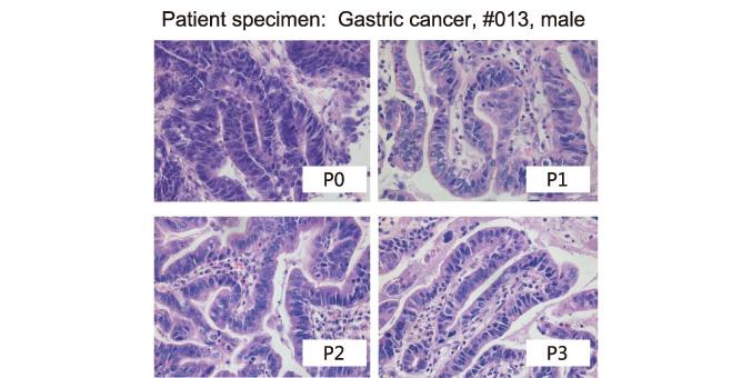 人源性肿瘤动物模型
